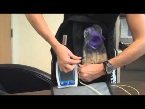 enteral-nutrition-with-kangaroo-feeding-pumps